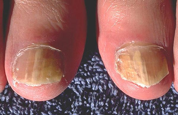 грибковая инфекция на ногтях у детей