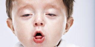 Лечение и профилактика ларингита у детей. Как распознать симптомы?