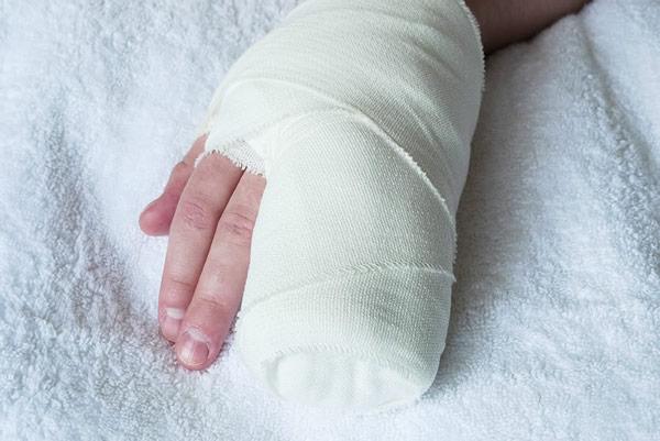 гипс на руке у ребенка при переломе пальцев