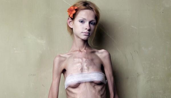 анорексия у подростка