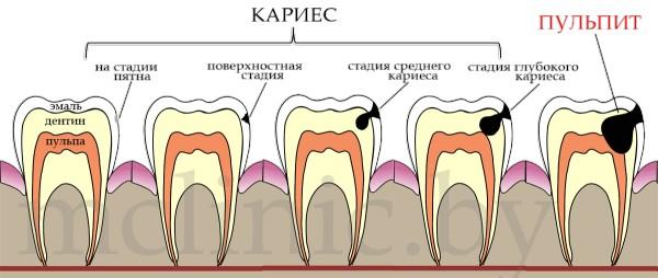 стадии развития кариеса вплоть до пульпита