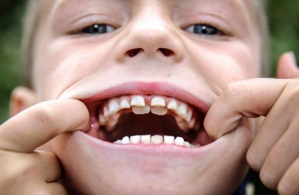 акульи зубы