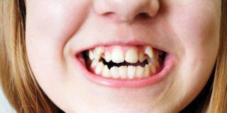 Акульи зубы у детей - что делать, нужно ли удалять?