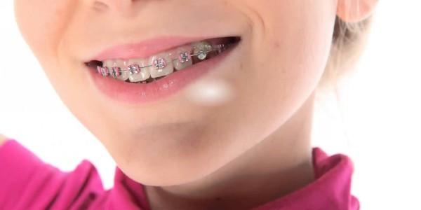 выравнивание зубов у детей