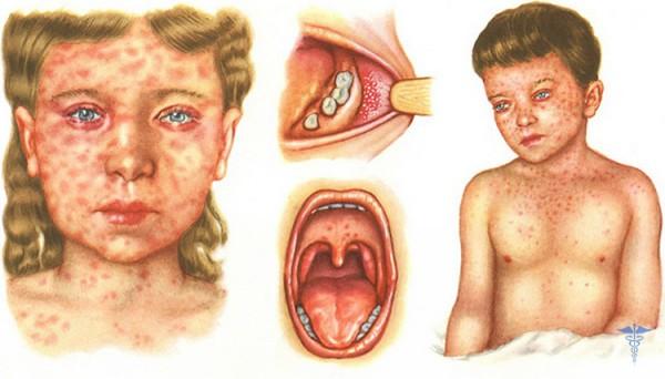 как выглядит корь –фото симптомов