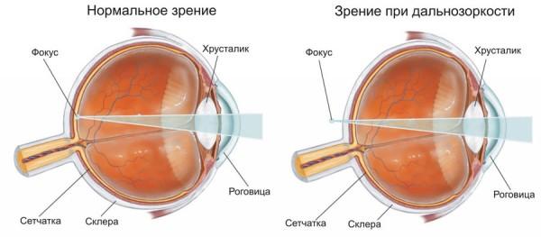 симптомы дальнозоркости