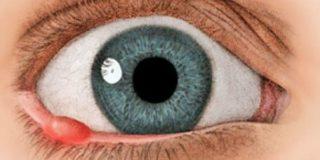 Как вылечить ячмень под глазом у ребенка