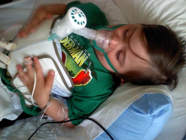 лечение пневмонии