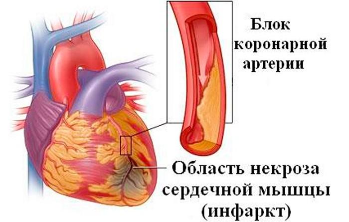 причины симптомы инфаркта миокарда