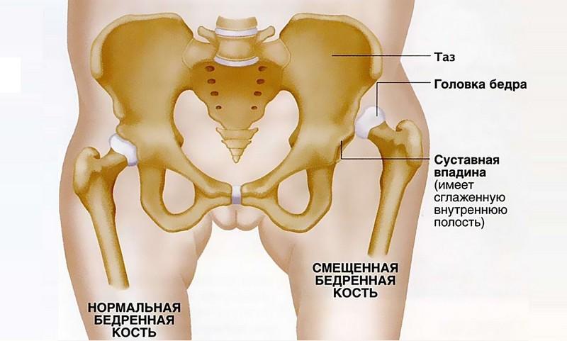 гипоплазия тазобедренного сустава у детей