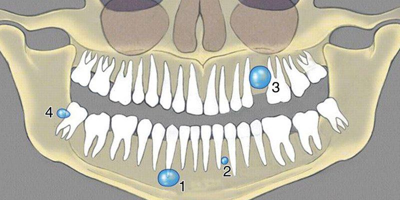Виды кисты зуба